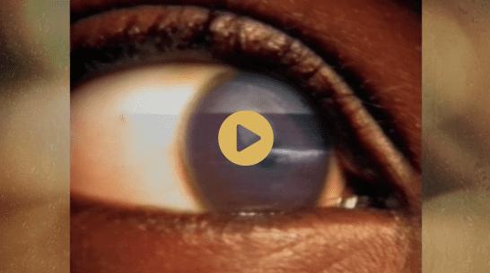 eyes-video-thumb